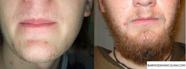 crescer-barba-antes-e-depois