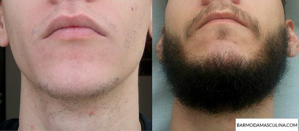 crescer-barba-minoxidil