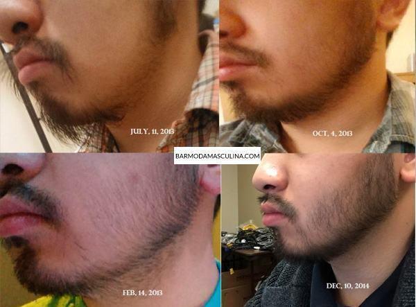 crescer-barba-tratamento